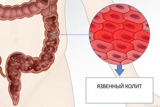 Диета при язвенном колите кишечника: особенности и задачи питания