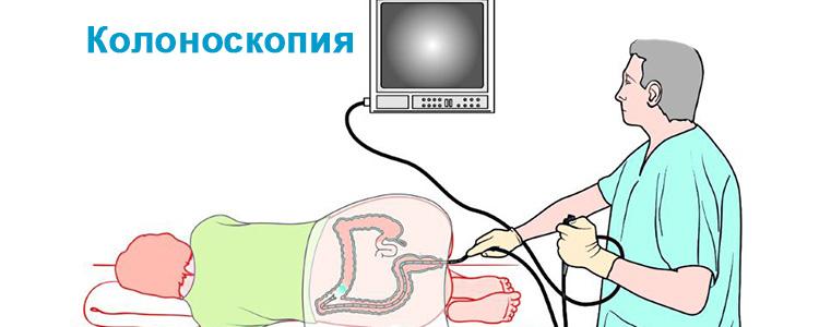Проведение колноскопии