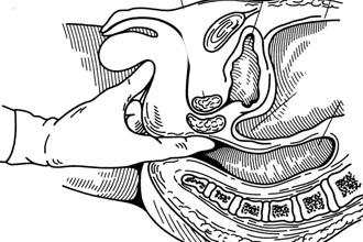 Ректальное обследование прямой кишки пальцем