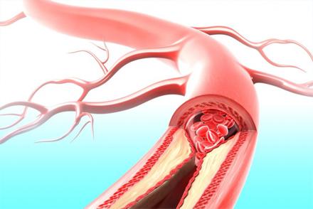 3д модель кровеносного сосуда