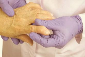 Врач исследует ревматоидный артрит