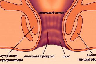 Тетрациклиновая мазь при геморрое инструкция по применению thumbnail
