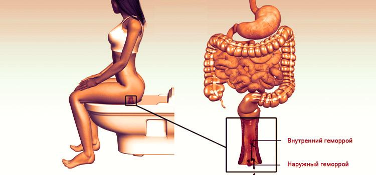 Лечение геморроя с помощью Горца почечуйного